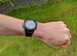 An arm with Garmin smartwatch